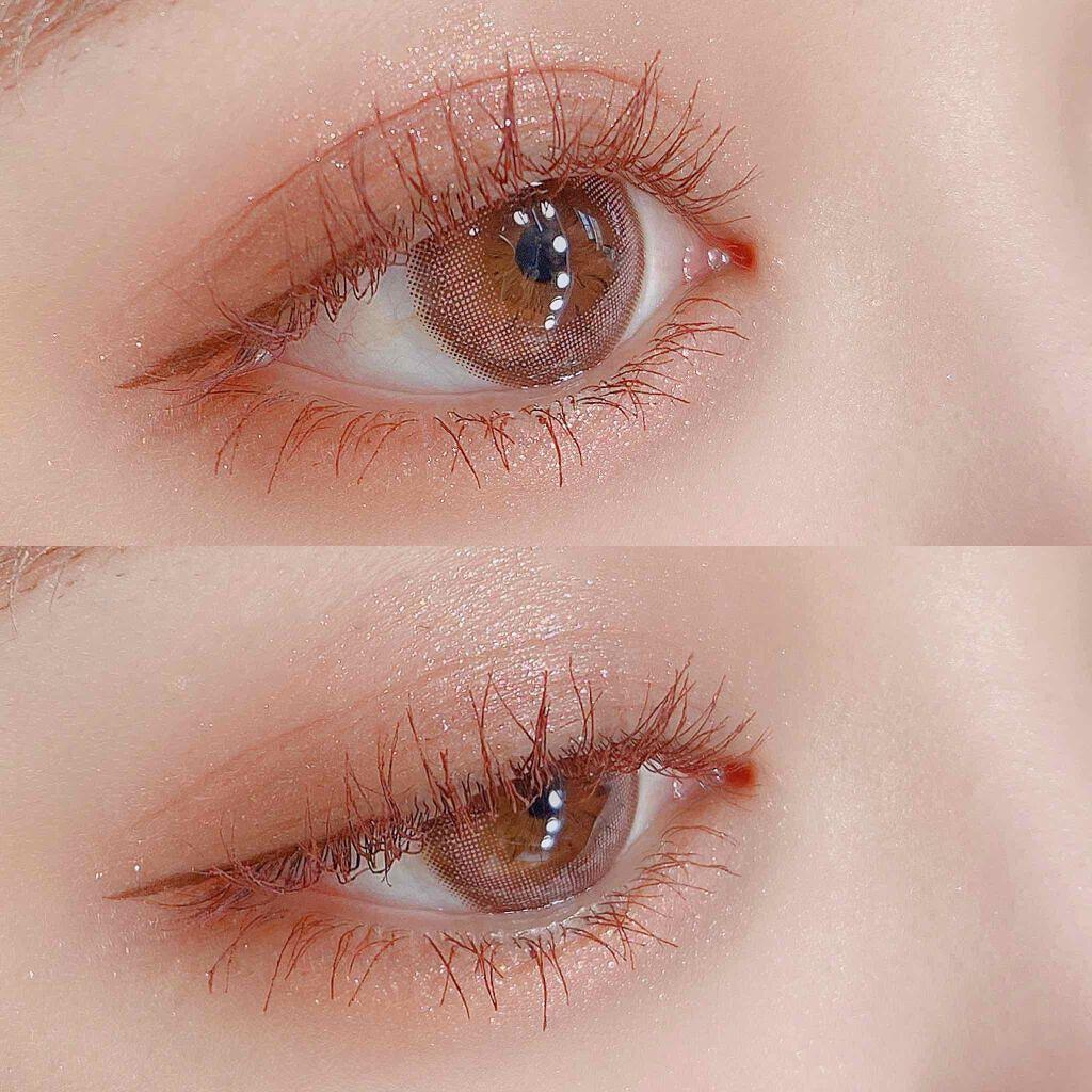 乾燥 周り が むける 目 皮 の
