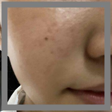 パーフェクトホワイトクレイ/専科/洗顔フォームを使ったクチコミ(2枚目)