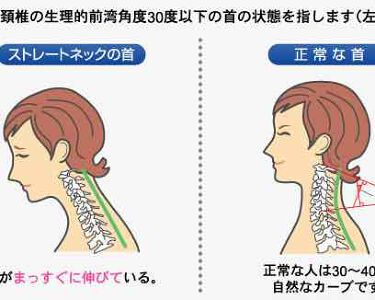 しゅり@小顔専門トレーナー on LIPS 「スマホを触ってると首や肩周まわりがガチガチにこってる💦朝おきて..」(2枚目)