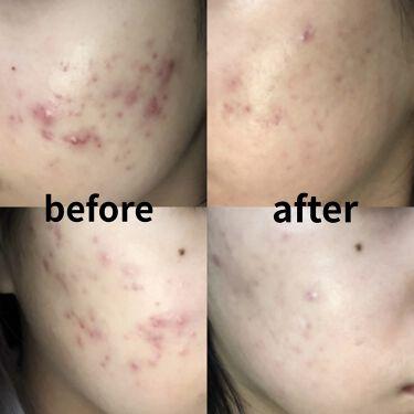 【画像付きクチコミ】赤ニキビ撃退スキンケア初投稿です!(スクロール1番下に値段表記あります。)美容皮膚科に2年近く通っているのですが初期に比べまだまだニキビがありますがだいぶ落ち着いてきたので、ここまでくるのにずっと使ってきたスキンケア達を紹介します👍小...