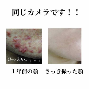 ニキビ治療薬クリーム (医薬品)/クレアラシル/その他を使ったクチコミ(4枚目)