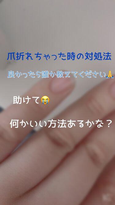 紅【スキンケア迷走中】 on LIPS 「【悲報爪が折れました😫】⚠️注意⚠️折れてしまった爪が出てきま..」(1枚目)
