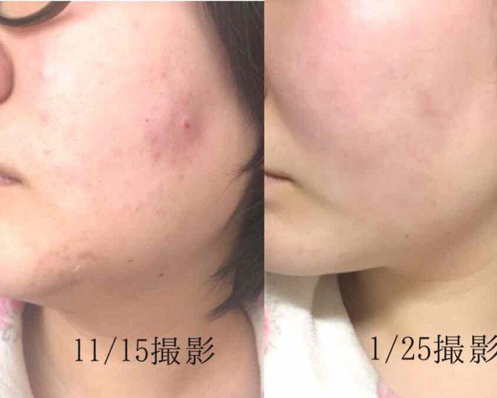ORBIS和漢淨肌化妝水M(水潤型)