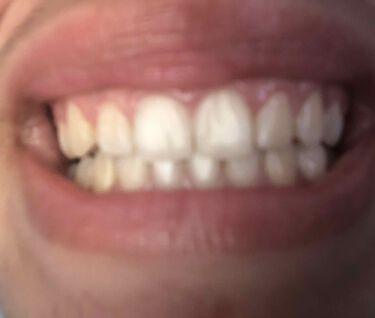 プレミアム ステインクリア ペースト/オーラツー/歯磨き粉を使ったクチコミ(3枚目)