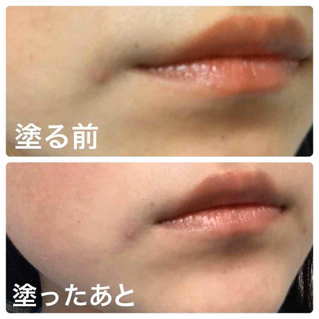ニキビ 唇