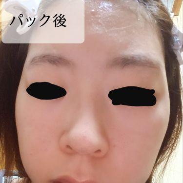 WHITENING FACE MASK/アフタヌーンティー/シートマスク・パックを使ったクチコミ(3枚目)
