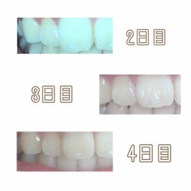 アパガードプレミオ/アパガード/歯磨き粉を使ったクチコミ(2枚目)