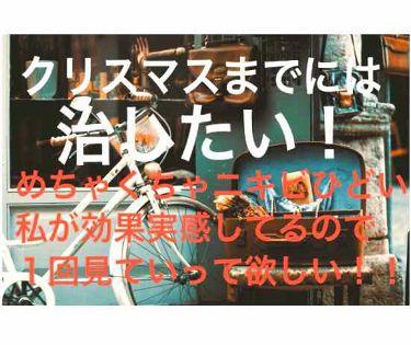スキンコンディショナー(ハトムギ化粧水)/ナチュリエ/化粧水を使ったクチコミのサムネイル(1枚目)