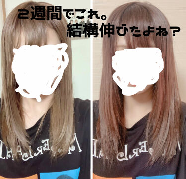 髪の毛 伸びる 速度
