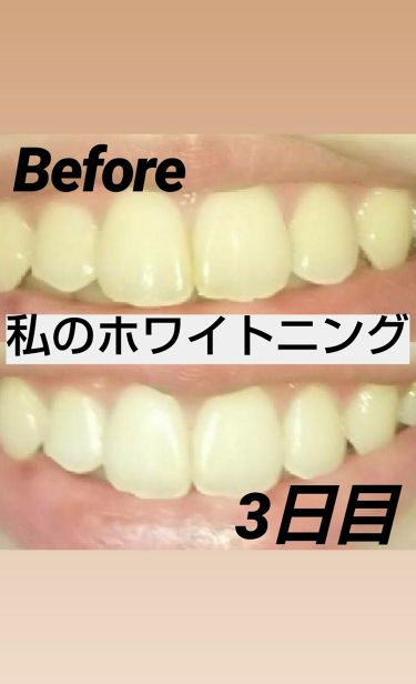 薬用パールホワイトproシャイン/beauty Labo/歯磨き粉を使ったクチコミ(1枚目)
