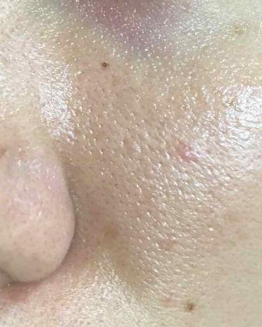 クロノセル/FABIUS/美容液を使ったクチコミ(4枚目)