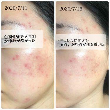 化粧水 II しっとり/Curel/化粧水を使ったクチコミ(2枚目)