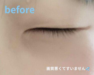 ローヤルゼリー配合 美容液/DAISO/美容液を使ったクチコミ(2枚目)