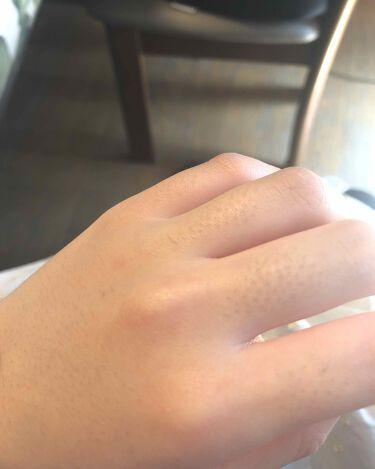 【画像付きクチコミ】はい!おはようございます!🙋♀️今回紹介するのは主に「鈴木ハーブ研究所のパイナップル豆乳ローション」です!👏👏👏👏👏指、腕、脚、の順に画像載せてます。指と腕は毛剃ってから4日目ほどで、脚の方は剃って1週間くらいたった今現在の脚です。...