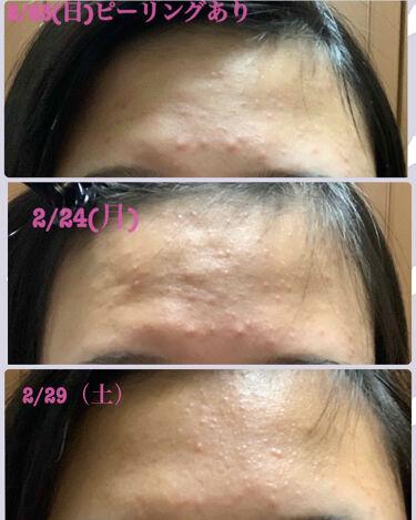 ビューティ モイスチャー洗顔料/ダヴ/洗顔フォームを使ったクチコミ(2枚目)