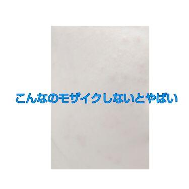 さいきa 保水治療ローション(医薬品)/Saiki/その他を使ったクチコミ(1枚目)