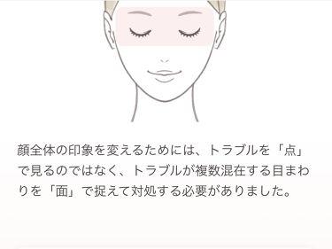 【画像付きクチコミ】「こだわりの色設定」ゴーグルラインの不調をカバーして健康的に🌸カバー力があるのに厚塗り感なし!!アクセーヌ•スキンカラーコントロール02レビューになります!!--------------------------------------...