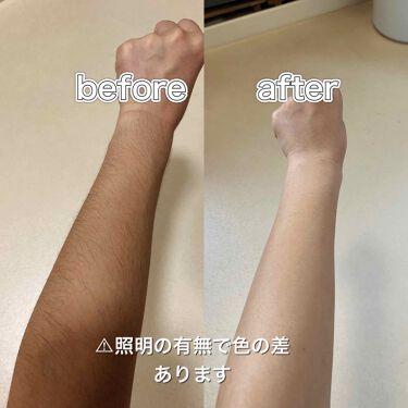 除毛クリームキット敏感肌用/エピラット/脱毛・除毛を使ったクチコミ(3枚目)