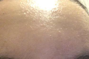 【画像付きクチコミ】肌は断食1日目めちゃくちゃ荒れてます…😭😭頑張ります!!