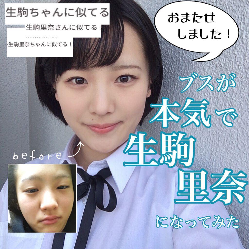 里奈 アトピー 生駒