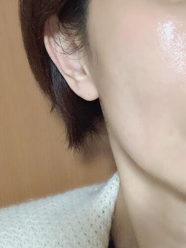 保湿液/ドモホルンリンクル/化粧水を使ったクチコミ(1枚目)