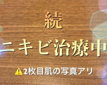 デュアック配合ゲル/雑談/その他スキンケアを使ったクチコミ(1枚目)