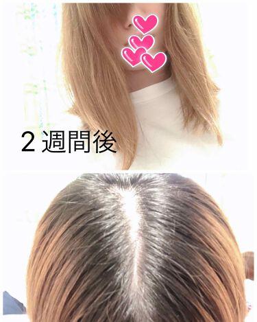 ヘアアクセルレーター レモンライムの香り/加美乃素本舗/頭皮ケアを使ったクチコミ(3枚目)
