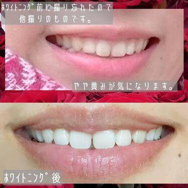 つぶらん子👀 on LIPS 「※歯の画像あり【ホワイトニング】白い歯。清潔感ありますよね。マ..」(3枚目)