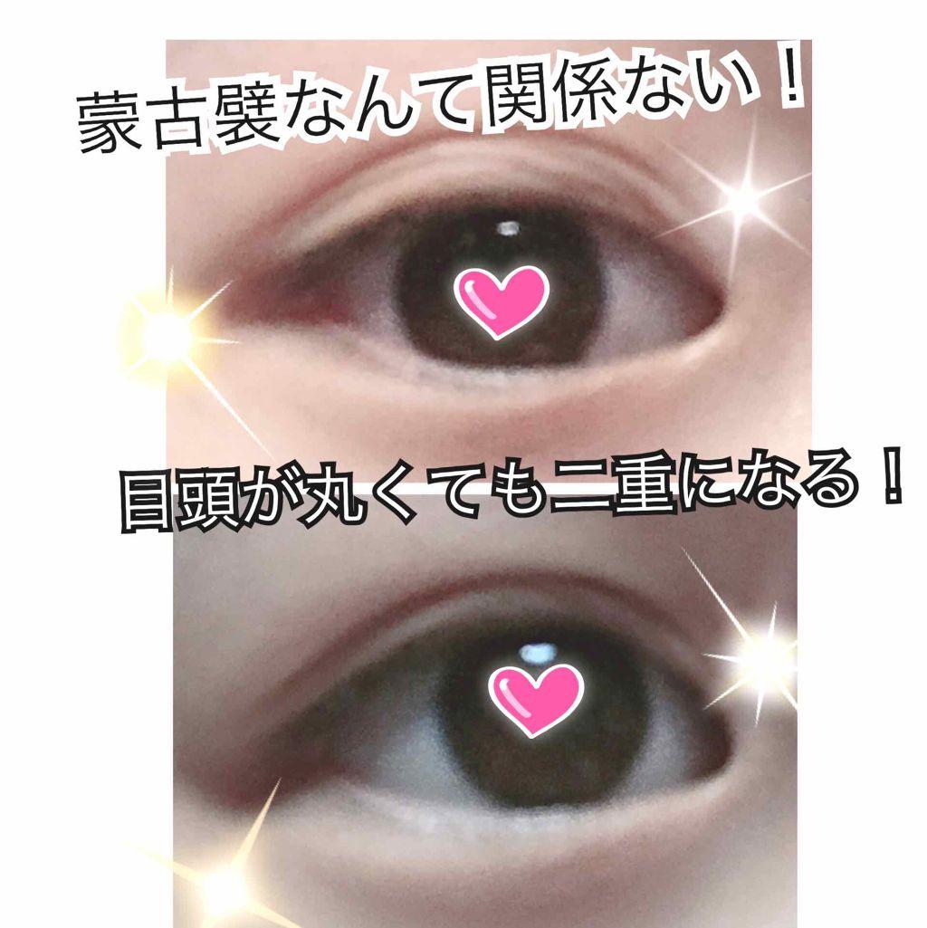 まぶた 腫れる 突然 片目 が
