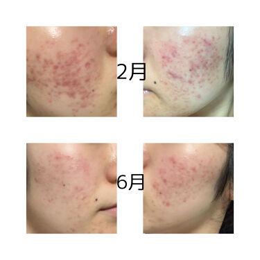 【画像付きクチコミ】※写真は2021年です。6月の写真逆でした。すみません🙇♀️私の肌質は混合肌+敏感肌でとてもニキビが出来やすい肌です。クチコミで良かったもの、韓国のスキンケア商品等をたくさん試しましたが、ダメでした。そんな私が4ヶ月でニキビ、ニキビ...