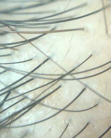 MTG ReFa GRACE HEAD SPA リファグレイスヘッドスパ/ReFa/ヘアケア美容家電を使ったクチコミ(2枚目)