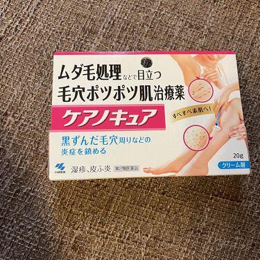 ケアノキュア(医薬品)/小林製薬/その他を使ったクチコミ(1枚目)