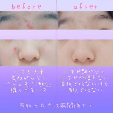 薬用アクアコラーゲンゲル美白/ドクターシーラボ/オールインワン化粧品を使ったクチコミ(3枚目)