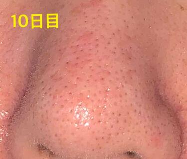 ディープクリア洗顔パウダー/ファンケル/洗顔パウダーを使ったクチコミ(4枚目)
