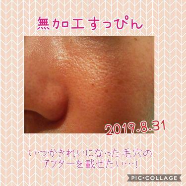 ポアスキンケアステップス/IPSA/美容液を使ったクチコミ(2枚目)