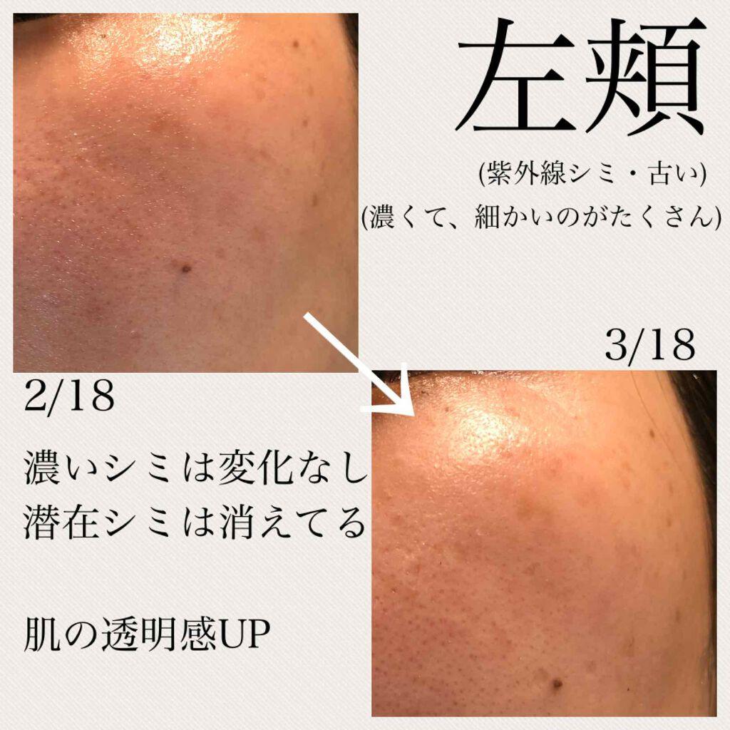 メラノ ショット シミ 消える 【朗報】KOSE メラノショット