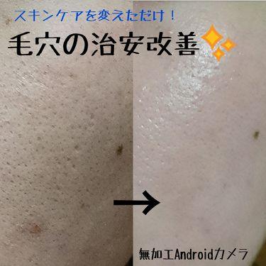 よぬさんの「アルビオンEXAGE ACTIVATION MOISTURE MIlK II<化粧水>」を含むクチコミ