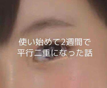 パワーアイリッドフィックス/Decorative Eyes/二重まぶた用アイテムを使ったクチコミ(1枚目)
