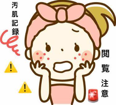 十味敗毒湯(医薬品)/ツムラ/その他を使ったクチコミ(1枚目)