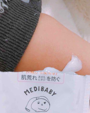 メディベビー 薬用モイストクリーム/その他/ボディ保湿を使ったクチコミ(3枚目)