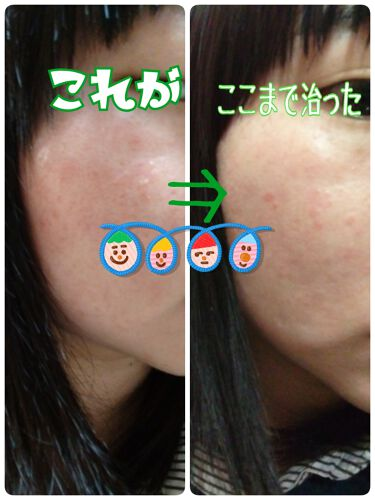 スキンケア洗顔料 薬用アクネケア/ビオレ/洗顔フォームを使ったクチコミ(4枚目)
