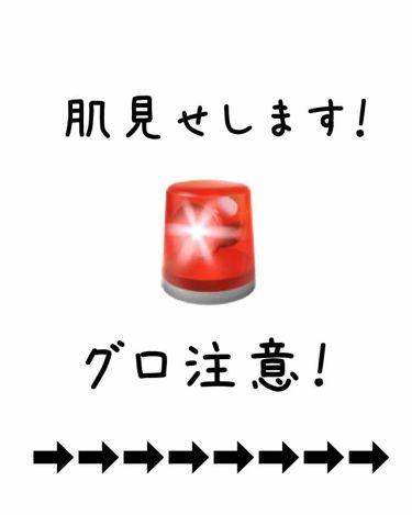 モイスチャー ミストローション II (しっとり)/アルージェ/ミスト状化粧水を使ったクチコミ(2枚目)