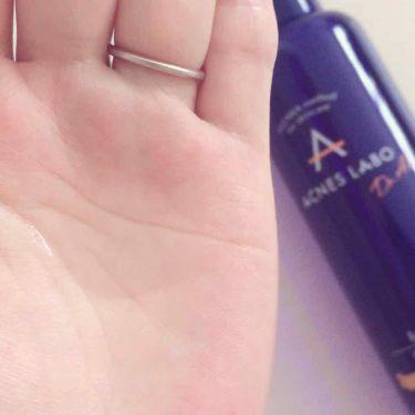 薬用ニキビケア ローション/アクネスラボ/化粧水を使ったクチコミ(3枚目)
