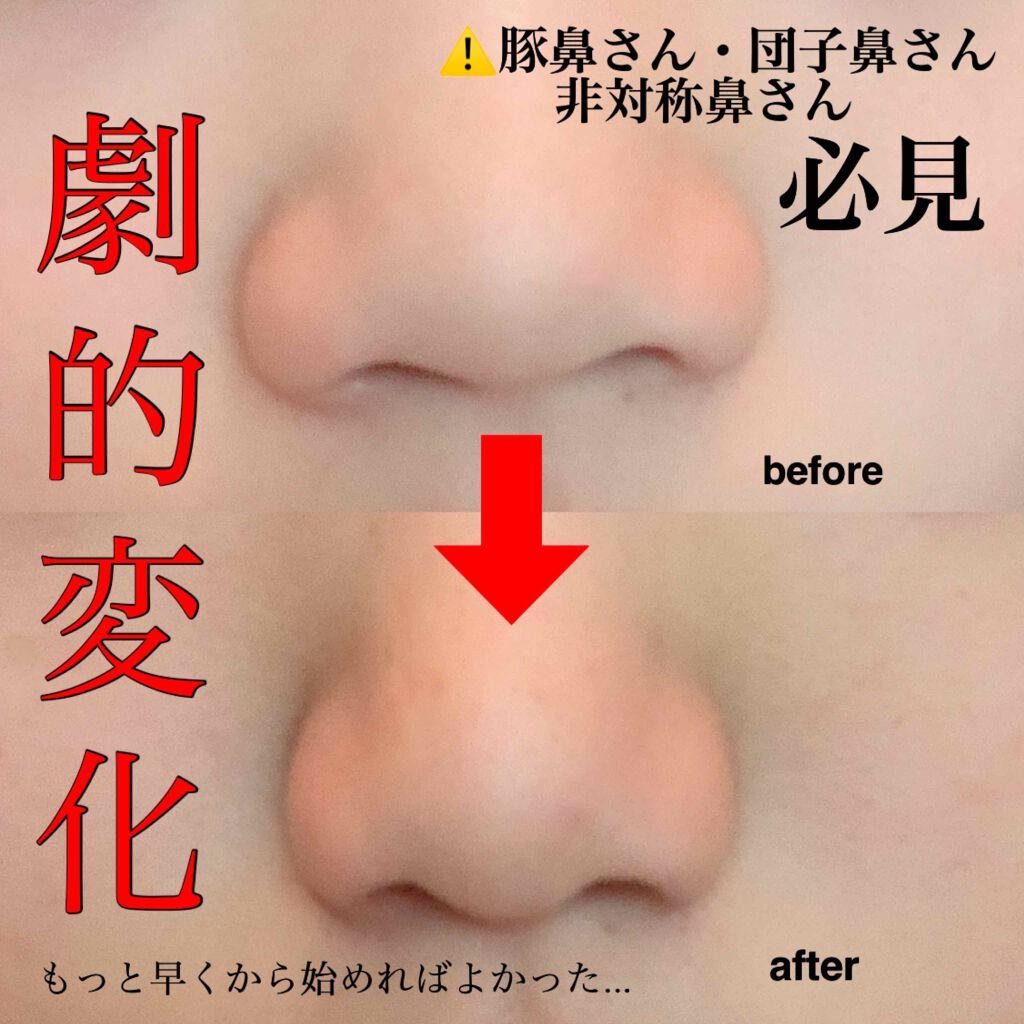 鼻 高く する 自力