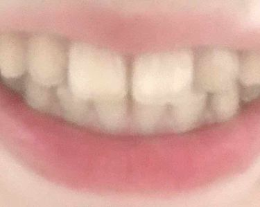 ポリリンキューブ  速攻美白/ミュゼホワイトニング/歯磨き粉を使ったクチコミ(4枚目)