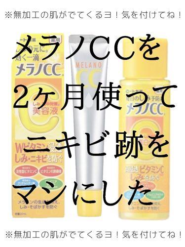 汗ちゃんさんの「メンソレータム メラノCC薬用しみ対策 美白化粧水<化粧水>」を含むクチコミ