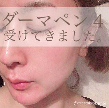 白ゆり@美容ブロガー on LIPS 「湘南美容外科でダーマペン4を受けてきました。୨୧┈┈┈┈┈..」(1枚目)
