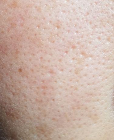 薬用 クリアウォッシュ/ORBIS/洗顔フォームを使ったクチコミ(2枚目)