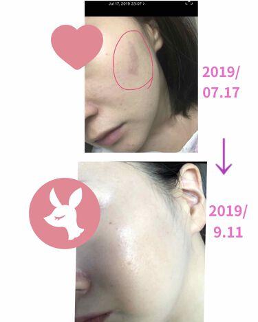 ヒドラソープ  パーム/モイスティーヌ/洗顔石鹸を使ったクチコミ(3枚目)