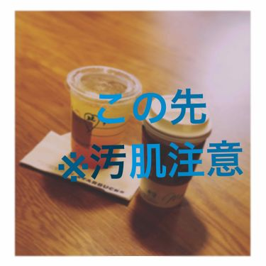 バイオイル/小林製薬/フェイスオイル・バームを使ったクチコミ(3枚目)